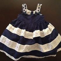 Camilla Blue White Lace Dress With Diaper Cover (24 Months) Photo