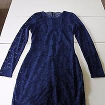Express Blue Floral Lace Dress  Photo